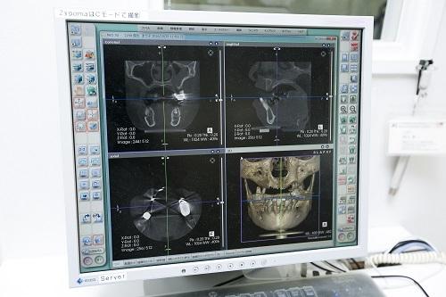 CTによる精密検査を行う意味