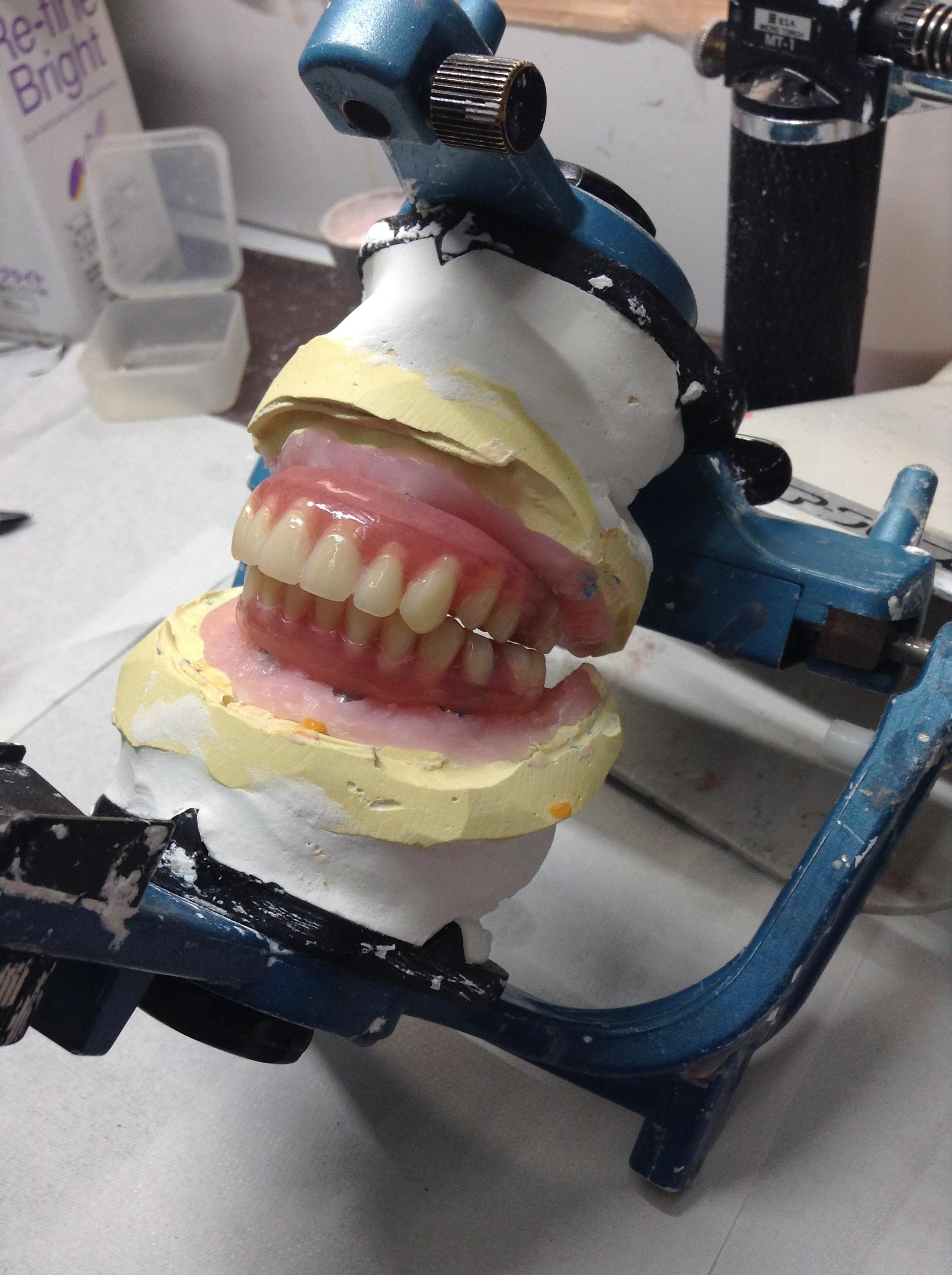オールオン4仮歯