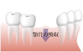 複数歯の欠損