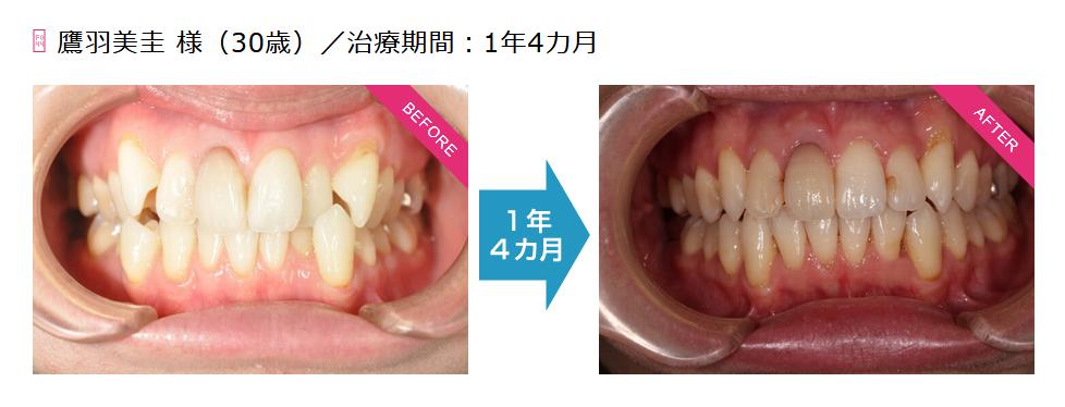 鷹羽美圭様(30歳)/治療期間:1年4カ月