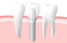 STEP4.人工歯(被せ物)の装着