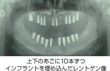 上下のあごに10本ずつインプラントを埋め込んだレントゲン像