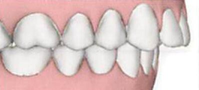 上の歯が出ている(出っ歯)