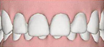上の歯が下の歯を隠している